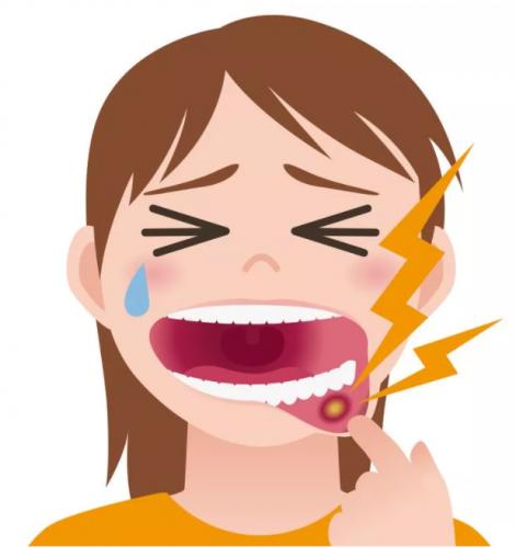 【民眾醫療中心-健康資訊】口腔潰瘍
