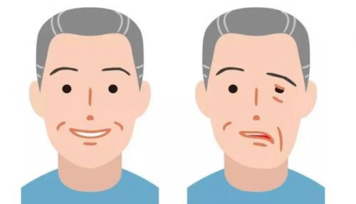 【民眾醫療中心-健康資訊】中醫論面癱